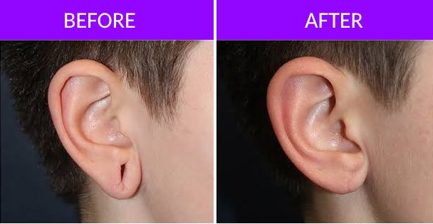 Ear Lobe Repair Surgery